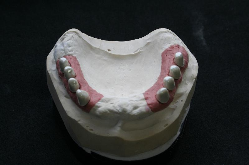 Implantologie abnehmbar