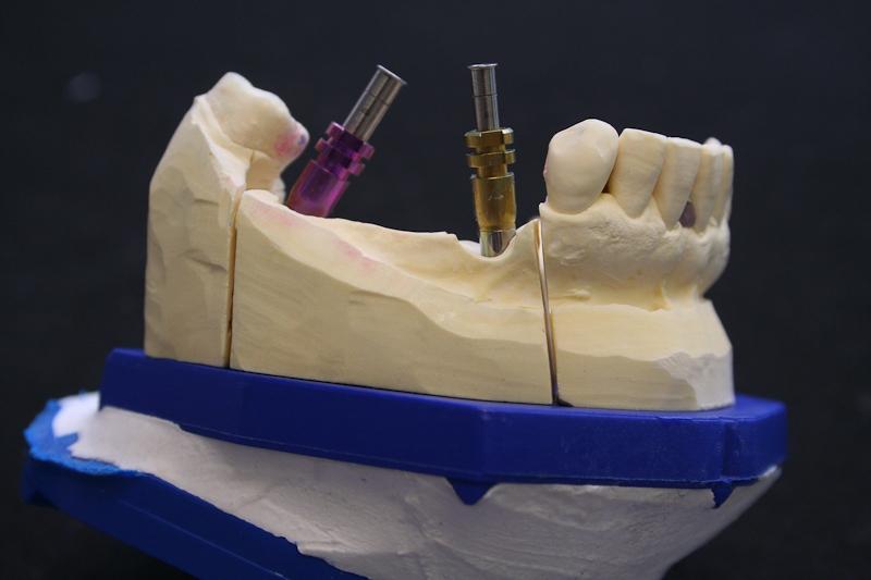 Implantologie-festsitzend