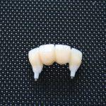 Vollkeramikbrücke implantatgetragen